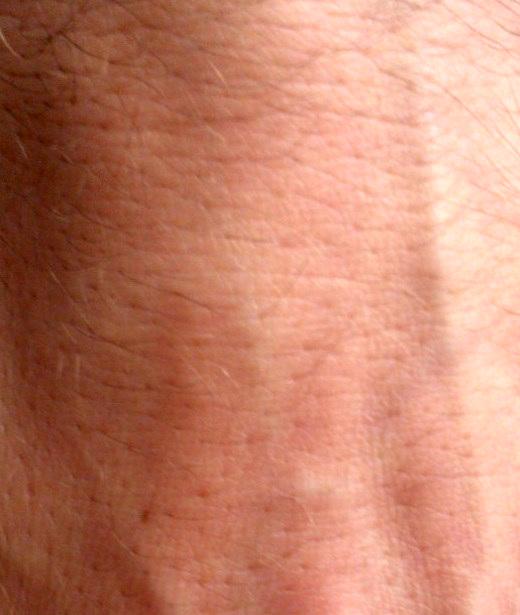 Foto einer Haut